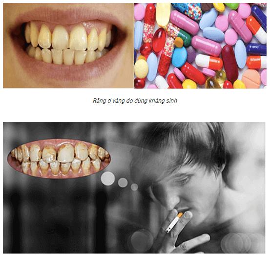 nguyên nhân gây răng ố vàng