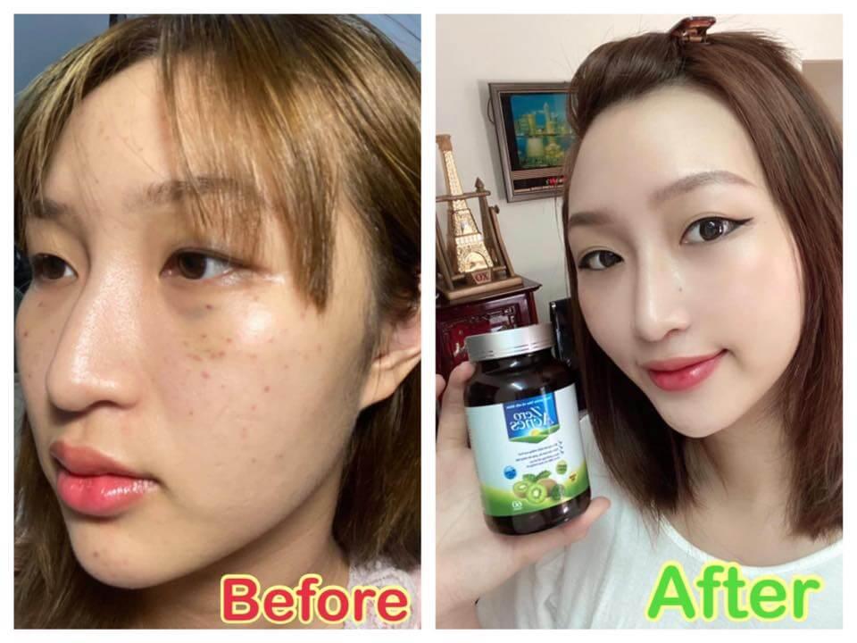 kết quả sử dụng viên uống zero acnes
